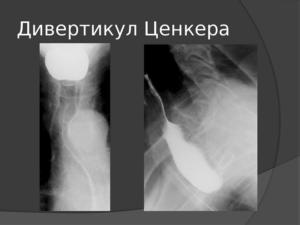 Что выявляет МРТ гортани