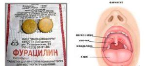 Лечение горла фурацилином